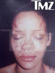 rihanna-battered-photo